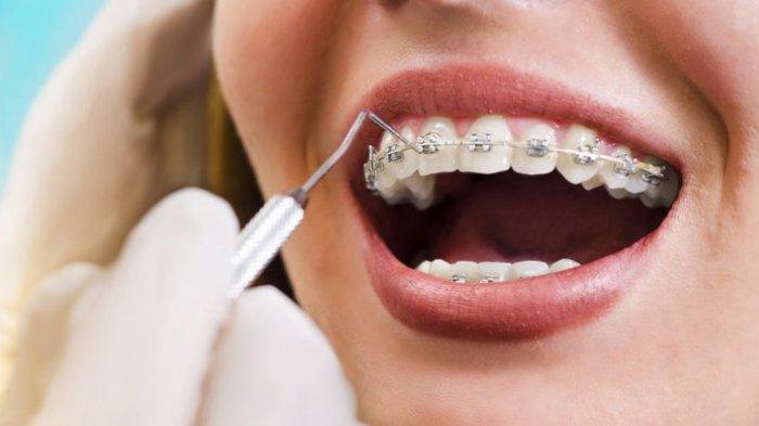 Ilustrasi pemasangan behel gigi