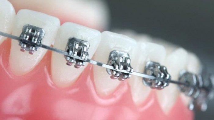 Ilustrasi pemasangan kawat gigi