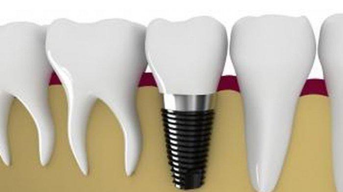 ilustrasi pemasangan gigi palsu