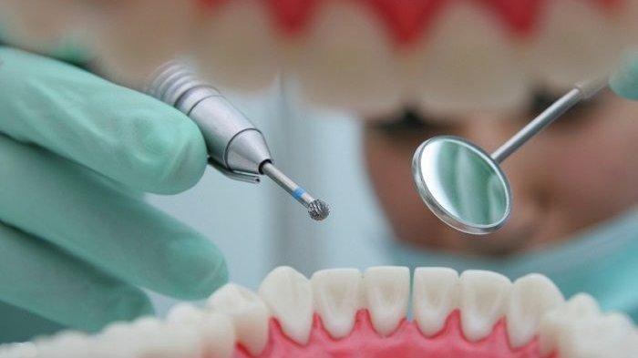 Ilustrasi pembersihan karang gigi, Menurut Dr. drg. Tri Setyawati, M.Sc pembersihan karang gigi dilakukan dengan cara scalling