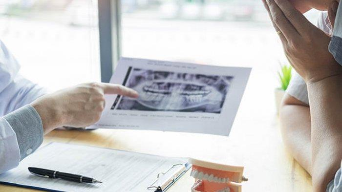 Pemeriksaan Foto Periapikal: Memastikan Gigi Patah Dibuatkan Crown atau Perlu Perawatan Saluran Akar