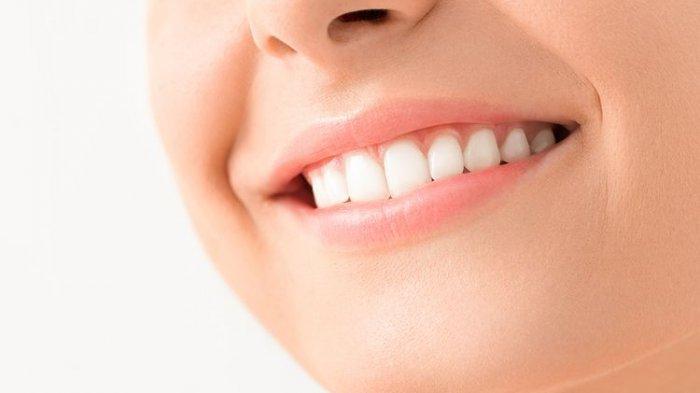 Ilustrasi gigi menjadi lebih putih setelah melakukan bleaching