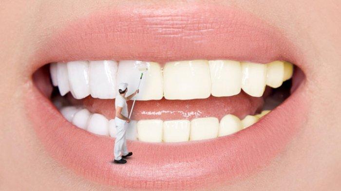 ilustrasi pemutihan gigi dengan bleaching dan veneer gigi