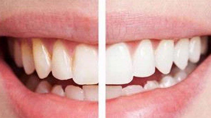 Gigi Kembali Menguning ataukah Tetap Putih setelah Pemutihan Gigi? Berikut Penjelasan Dokter
