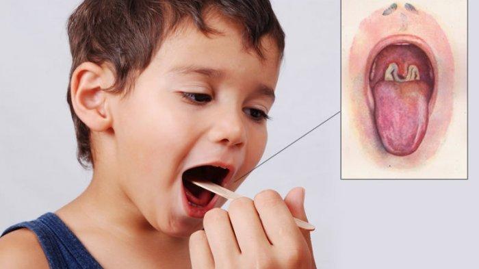 ilustrasi penyakit difteri