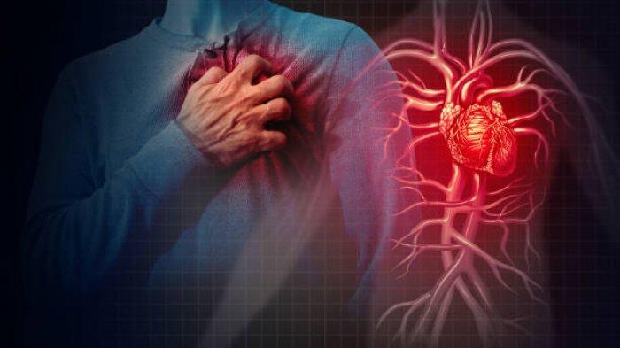 Hati-hati, Serangan Jantung Biasa Terjadi Tanpa Adanya Gejala, Begini Penjelasan Dokter