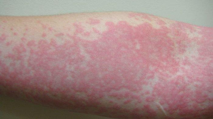 ilustrasi masalah kulit