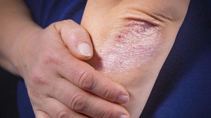 ilustrasi penderita penyakit kulit, begini penjelasan dr. Lusiyanti, M.Med., Sp.KK
