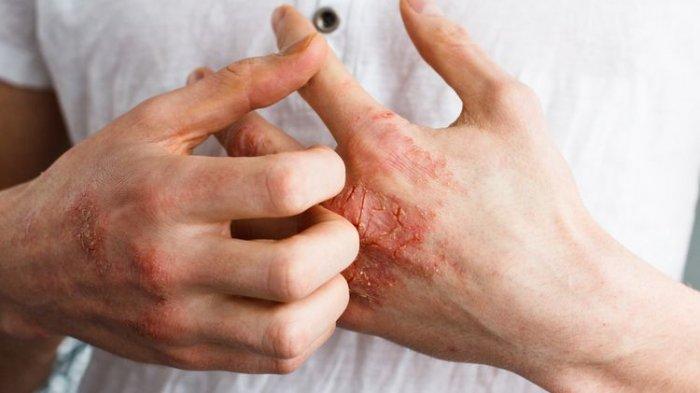 ilustrasi penyakit kulit dermatitis atopik