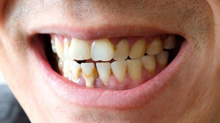 Dokter Menjelaskan Penyakit Peridontitis dapat Menyebabkan Gigi Tanggal