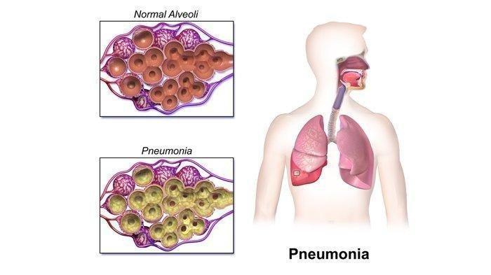 Mengenal Penyakit Pneumonia: Radang pada Otot Paru-paru serta Penyebabnya