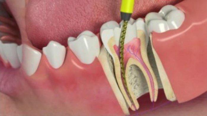 drg. Anastasia Beberkan Faktor-faktor yang Mempengaruhi Perawatan Saluran Akar Gigi
