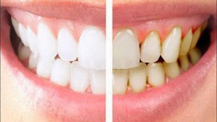 Ilustrasi perbandingan gigi bersih dan berkarang