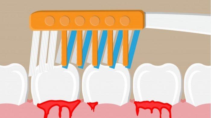 Resiko-resiko yang Terjadi Akibat Periodontitis, Salah Satunya Penanggalan Gigi