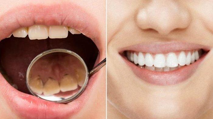 ilustrasi penumpukan plak gigi