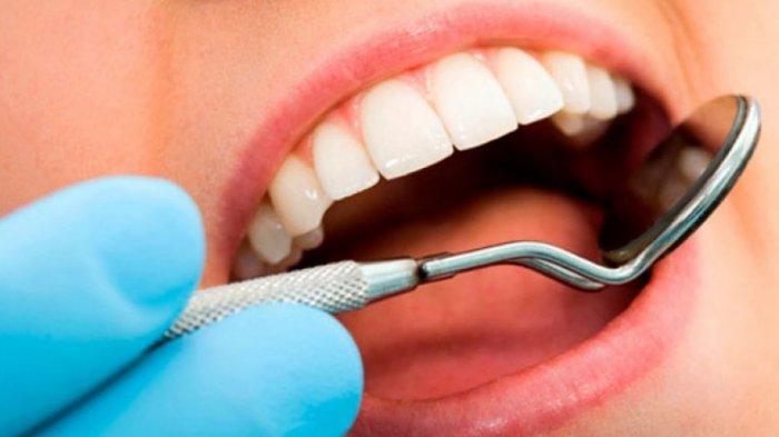 Ilustrasi gigi keropos, menurut Dr. drg. Munawir H. Usman, M.AP