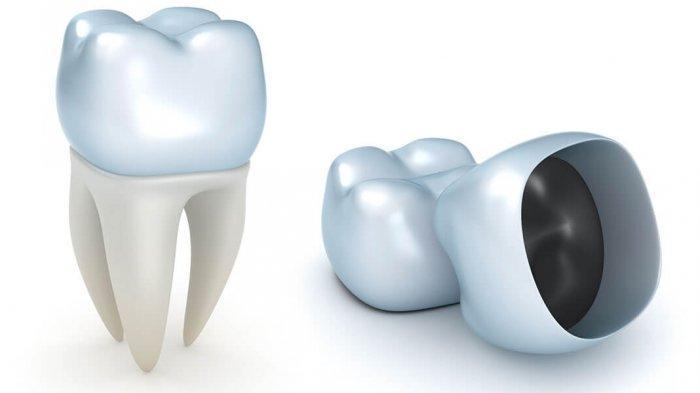 drg. Nadia Yuniastuti Winarta Sebut Hindari Makanan Keras untuk Menjaga Ketahanan Restorasi Gigi