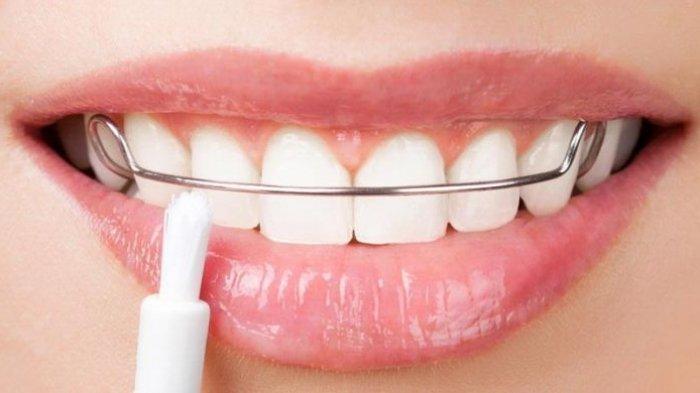 Tujuan Retainer Bukan untuk Merapikan Gigi, Simak Ulasan drg. R. Ngt. Anastasia Ririen