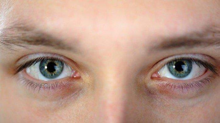 ilustrasi penyakit retinoblastoma
