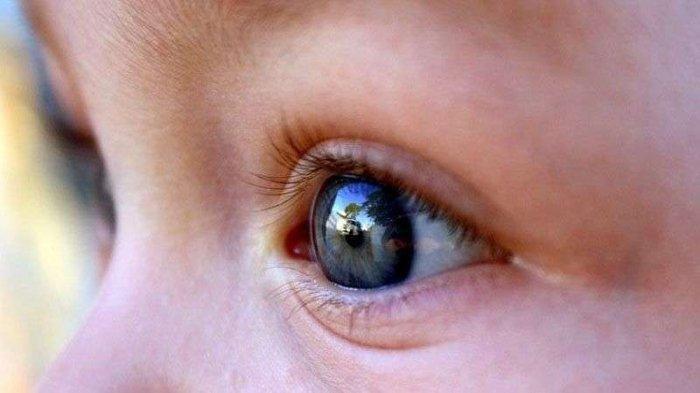 Mengenal Penyebab dan Cara Penanganan Penyakit Retinoblastoma yang Dijelaskan oleh Dokter