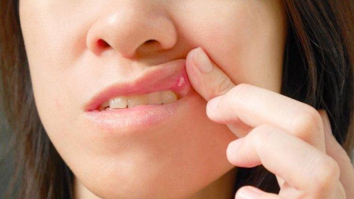 Menurut Dokter Gigi, Penyebab Pasti Sariawan Harus Diidentifikasi Terlebih Dahulu