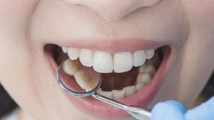Ilustrasi - Melakukan scaling gigi