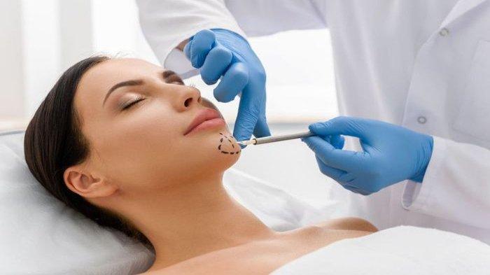 Ilustrasi - Perawatan tanam benang untuk wajah lebih kencang