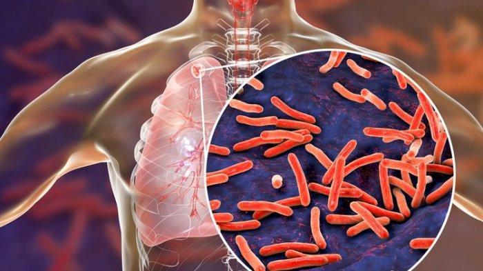 ilustrasi tbc