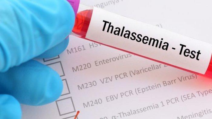 Mengenal Penyebab dan Cara Pengobatan Penyakit Herediter: Thalasemia