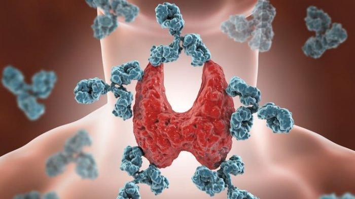 ilustrasi penyakit tiroid
