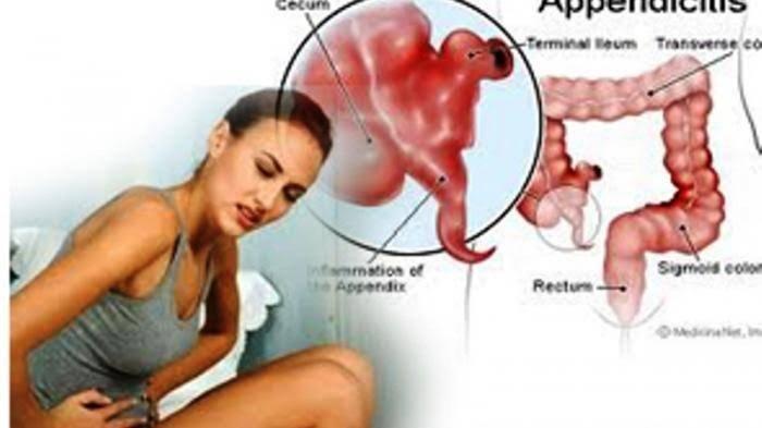 Apakah Usus Buntu Kronis Harus Segera Dioperasi? Berikut Penjelasan dr. Aris Ramdhani Sp.B.
