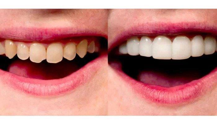 Memperbaiki Warna Gigi Kusam dengan Teknik Veneer