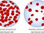 anemia-1.jpg