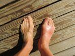 foto-hanya-ilustrasi-pembengkakan-pada-kaki-akibat-covid-19.jpg