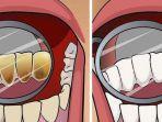 perbandingan-gigi-dan-gusi-perokok.jpg