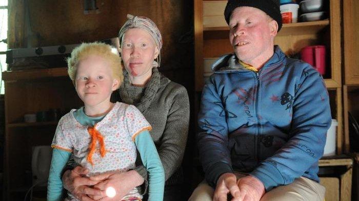 Diselimuti Mitos hingga Diskriminatif, Albino di Afrika Selatan Hidup dalam Ketakutan, Ini Mitosnya