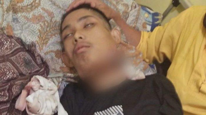 Asep Rahayu (22) pemuda asal Kecamatan Pakenjeng Kabupaten Garut kini telah diberangkatkan untuk melakukan kemoterapi di RS Al Ihsan Bandung.
