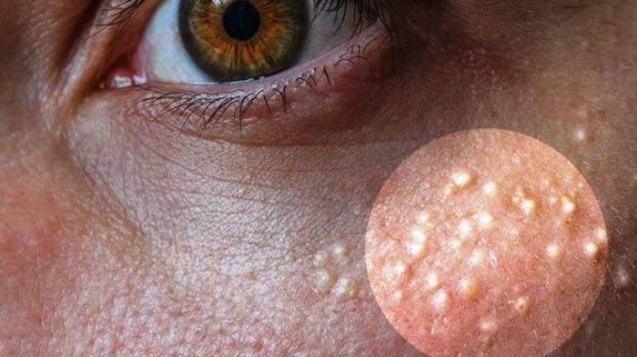 Bintik Susu pada Wajah Bikin Risih? Ini Cara Alami Menghilangkannya