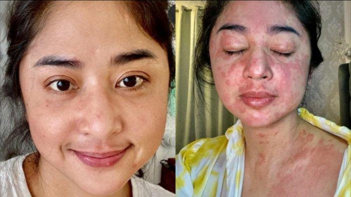 Dewi Perssik mengalami gejala kulit merah-merah akibat Covid-19.