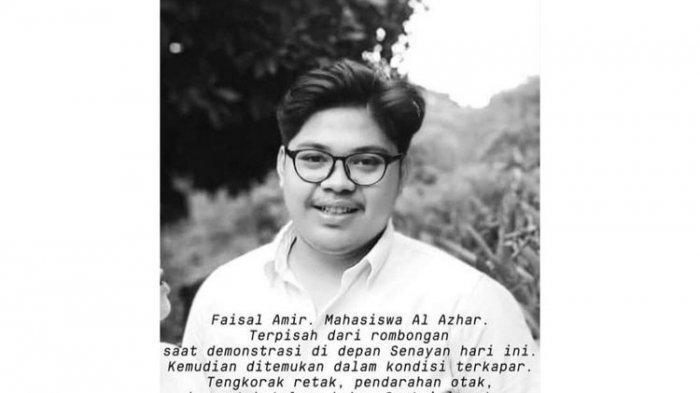 Cek Fakta Kabar Mahasiswa Universitas Al Azhar Indonesia Meninggal, Sang Ibu Sebut Tengkorak Retak