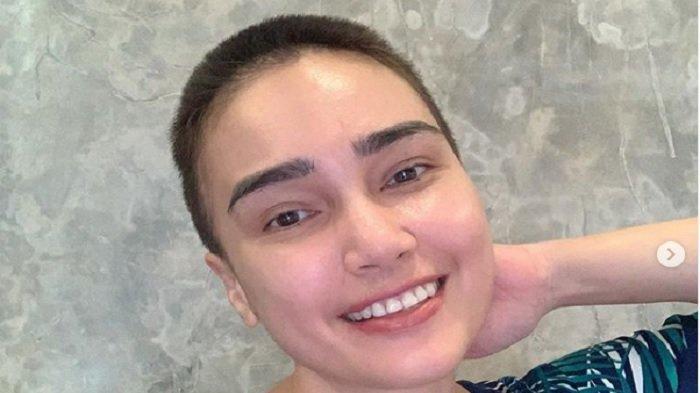 Rambut Rontok karena Kemoterapi, Kondisi Feby Febiola Sudah Baik, Urusan Kanker Pasrah pada Tuhan