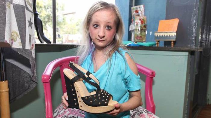 Bertubuh Mini, Hannah Tetap Bermimpi Ingin Punya Pacar - Tribun Jabar