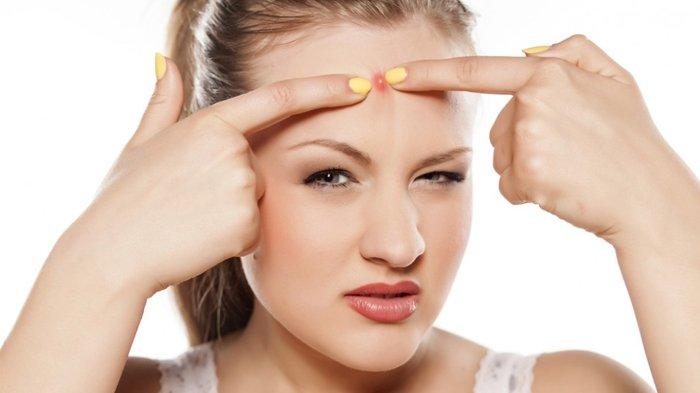 Muka Berjerawat? Jangan Asal Diobati,  Kenali Penyebab dan Cara Penanganannya,
