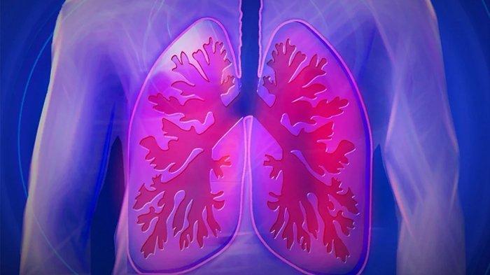 Penting Saat Pandemi Covid-19, Begini Cara Bersihkan Paru-paru Dengan Cara Alami