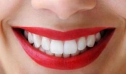 Pandemi Bikin Takut ke Dokter Gigi? Bersihkan Karang Gigi Pakai Cara Tradisional Ini Saja, Mudah