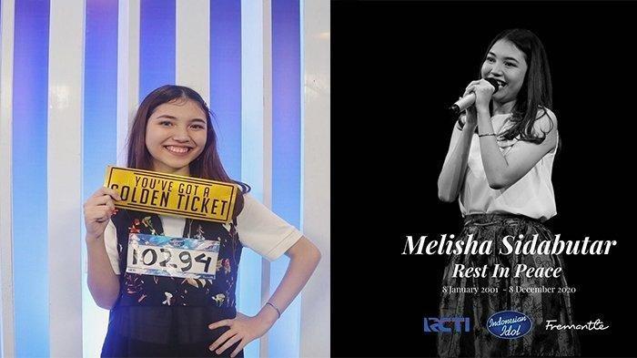 Peserta Indonesian Idol Melisha Sidabutar Meninggal, Ini Pesan Menyayat Hati dari Saudara Kembarnya