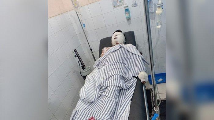 BREAKING NEWS- Niat Kencan, Pria Ini Malah Dipukul dan Dibakar di Kamar Hotel di Karawang
