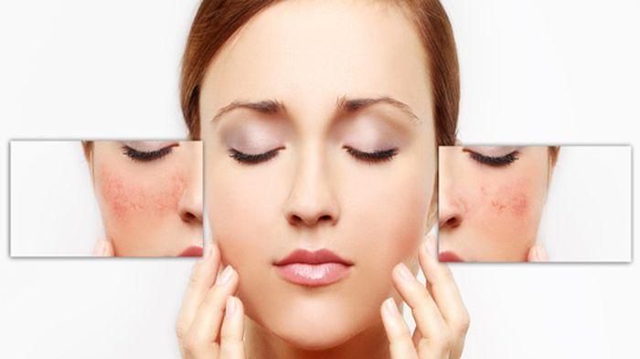 Rahasia Cantik agar Kulit Wajah Tidak Kusam dan Kering, Aplikasikan 6 Masker Ini untuk Mengatasinya