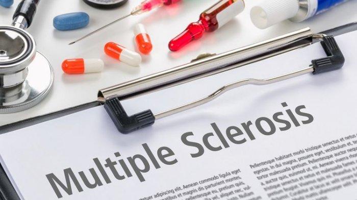 Apa Itu Multiple Sclerosis, Bisa Ganggu Penglihatan Hingga Kerusakan Saraf Permanen