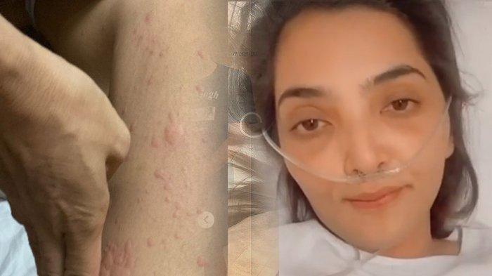 Setelah Bentol-bentolnya Sembuh, Ashanty Merengek Minta Nonton Sampai Bawa Tabung Oksigen ke Bioskop